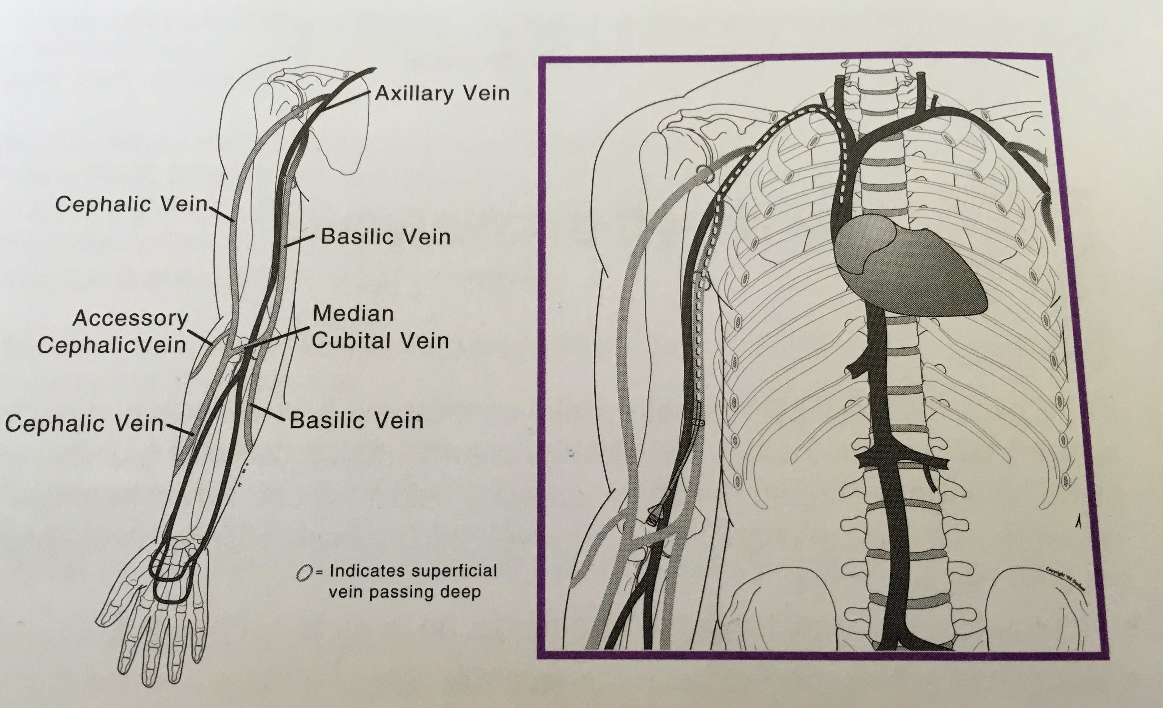 the picc experience – i will survive, Cephalic Vein